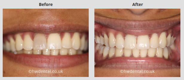 teeth whitening north west london harrow weald dental