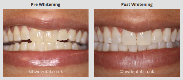 Teeth Whitening Harrow